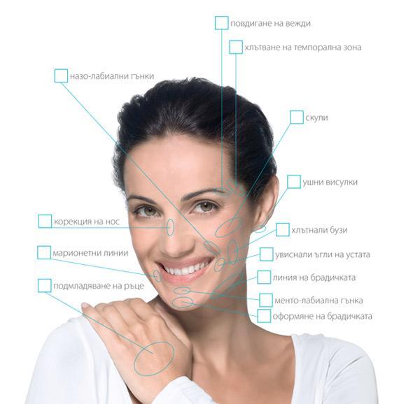Radiesse therapy schema